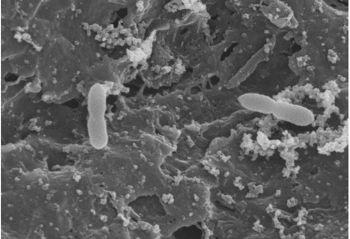 Identificación de Oenococcus oeni autóctonos de uvas y vino del Priorat y su selección para la vinificación