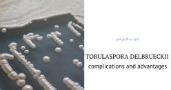 Considerations on the use of Torulaspora delbrueckii for winemaking